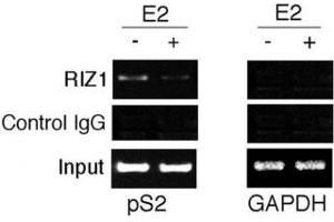 Image no. 4 for anti-PR Domain Containing 2, with ZNF Domain (PRDM2) (AA 1-347) antibody (ABIN3032300)