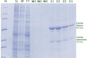 Image no. 3 for Rho1D4 Agarose (ABIN3199243)
