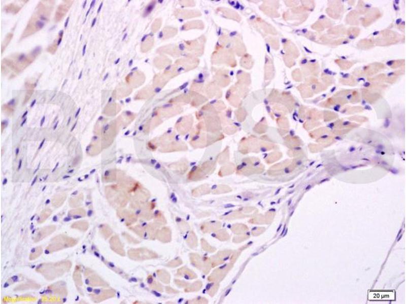 Immunohistochemistry (IHC) image for anti-IL17A antibody (Interleukin 17A) (AA 110-150) (ABIN738891)