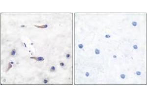 Image no. 2 for anti-Myristoylated Alanine-Rich Protein Kinase C Substrate (MARCKS) (AA 136-185) antibody (ABIN1532930)