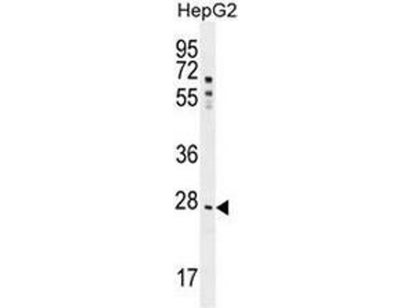 Western Blotting (WB) image for anti-NR0B2 antibody (Nuclear Receptor Subfamily 0, Group B, Member 2) (AA 56-83) (ABIN953745)