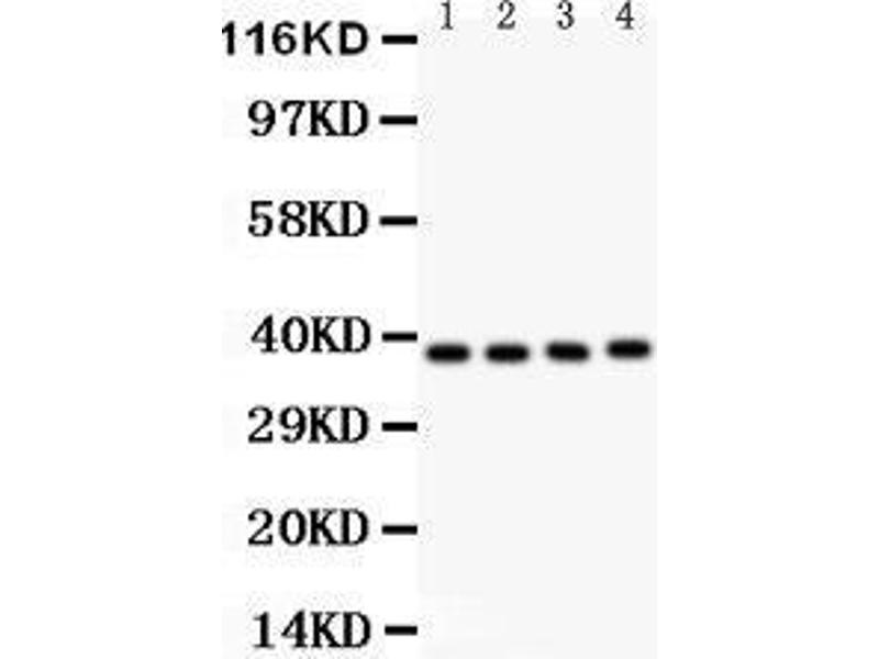 Western Blotting (WB) image for anti-NFKBIB antibody (Nuclear Factor of kappa Light Polypeptide Gene Enhancer in B-Cells Inhibitor, beta) (AA 56-237) (ABIN3043567)