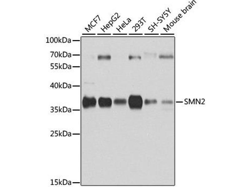 Image no. 3 for anti-Survival of Motor Neuron 1, Telomeric (SMN1) antibody (ABIN6567523)