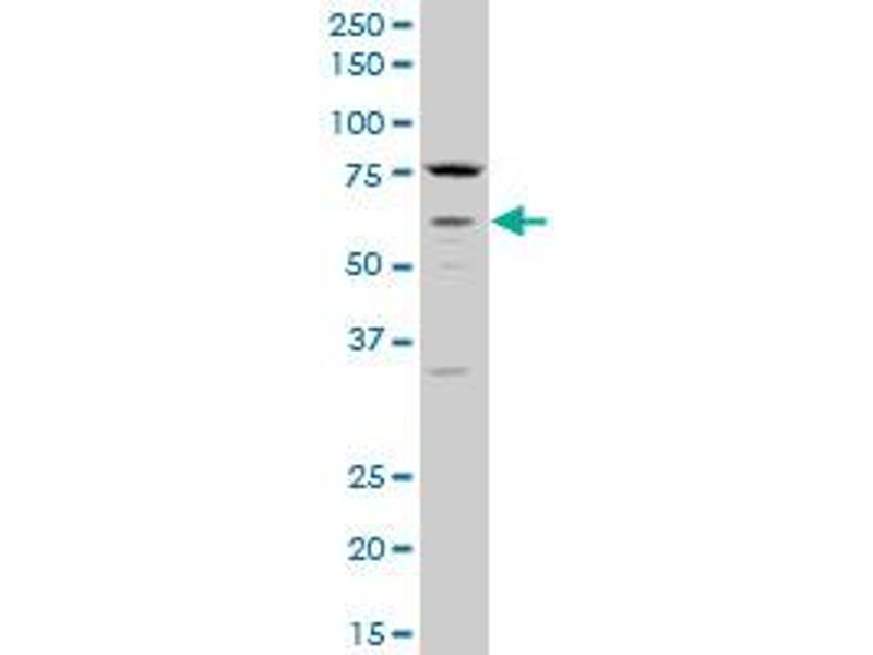Western Blotting (WB) image for anti-Cholinergic Receptor, Muscarinic 3 (CHRM3) (AA 1-67) antibody (ABIN560365)