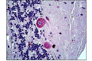 Immunohistochemistry (Paraffin-embedded Sections) (IHC (p)) image for anti-Ephrin A5 (EFNA5) (AA 189-200) antibody (ABIN783865)