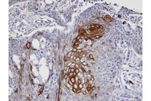 Image no. 5 for anti-Eukaryotic Translation Initiation Factor 4 gamma 2 (EIF4G2) (N-Term) antibody (ABIN2855137)