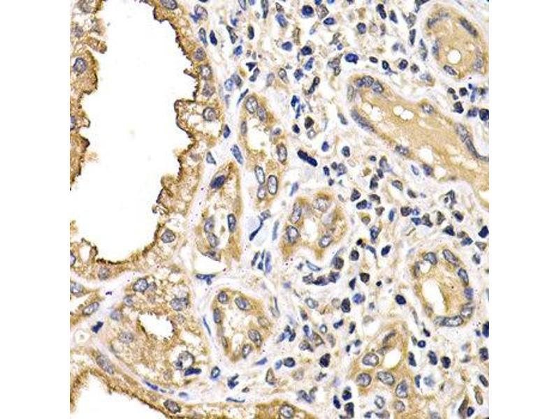 Immunohistochemistry (IHC) image for anti-Arrestin, beta 2 (ARRB2) antibody (ABIN1871114)