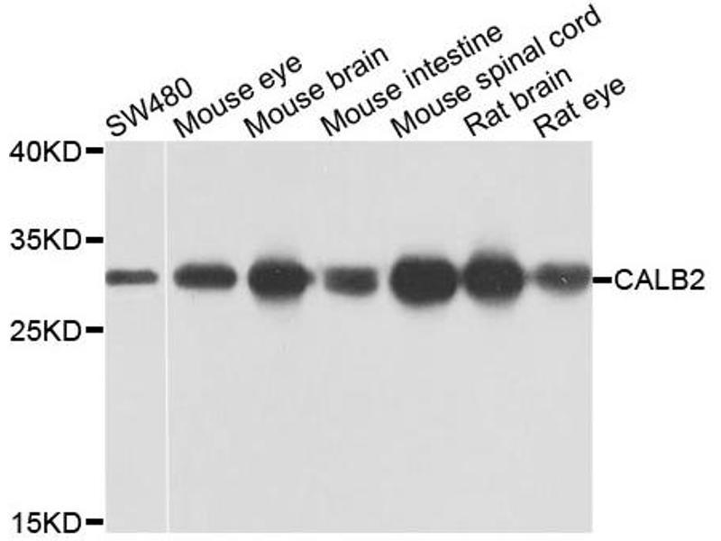 Image no. 2 for anti-Calbindin 2 (CALB2) antibody (ABIN6572017)
