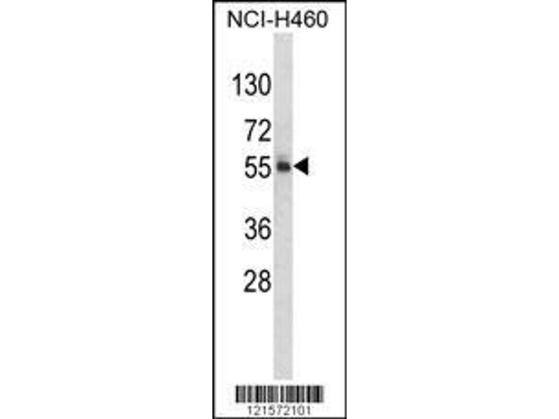 Western Blotting (WB) image for anti-FTO antibody (Fat Mass and Obesity-Associated) (AA 1-30) (ABIN390964)
