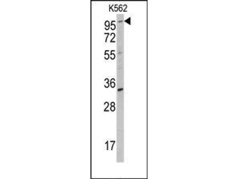 image for anti-Receptor Tyrosine Kinase-Like Orphan Receptor 2 (ROR2) antibody (ABIN359932)