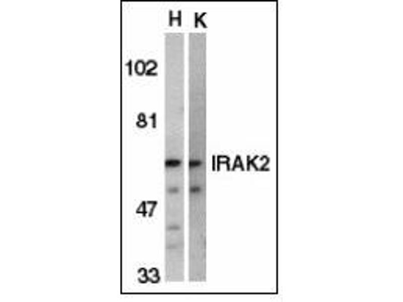 Western Blotting (WB) image for anti-Interleukin-1 Receptor-Associated Kinase 2 (IRAK2) (C-Term) antibody (ABIN615236)