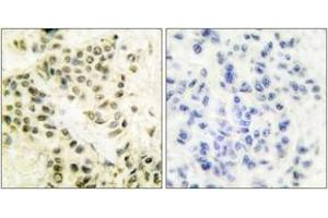 Image no. 2 for anti-Protein Kinase, DNA-Activated, Catalytic Polypeptide (PRKDC) (AA 4061-4110) antibody (ABIN1533256)