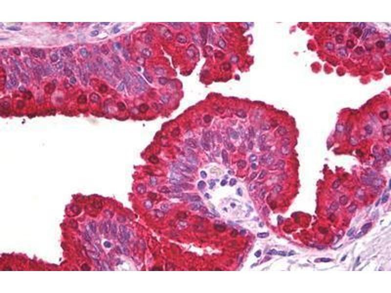 Immunohistochemistry (IHC) image for anti-ATP-Binding Cassette, Sub-Family A (ABC1), Member 5 (ABCA5) antibody (ABIN962033)