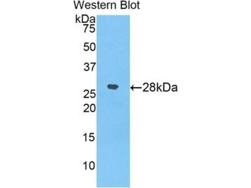 Western Blotting (WB) image for alpha-2-Macroglobulin (A2M) ELISA Kit (ABIN6574099)