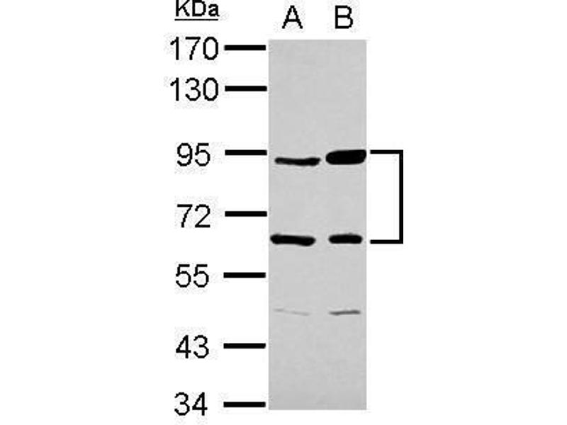 Western Blotting (WB) image for anti-Complement Factor B (CFB) (Internal Region) antibody (ABIN2855659)