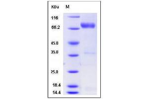 image for Neuregulin 1 (NRG1) (N-Term), (AA 2-246) (Active) protein (Fc Tag,ECD) (ABIN2004418)
