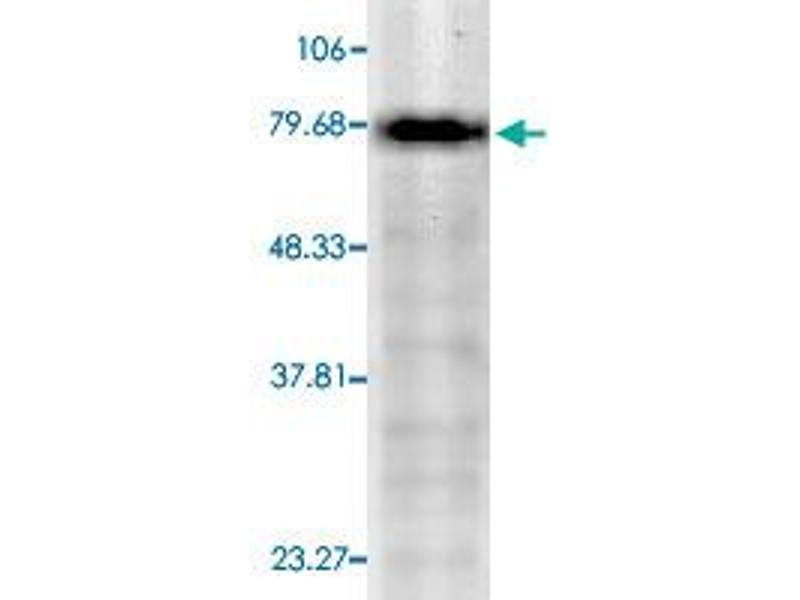 Western Blotting (WB) image for anti-Potassium Voltage-Gated Channel, KQT-Like Subfamily, Member 1 (KCNQ1) antibody (ABIN5581685)