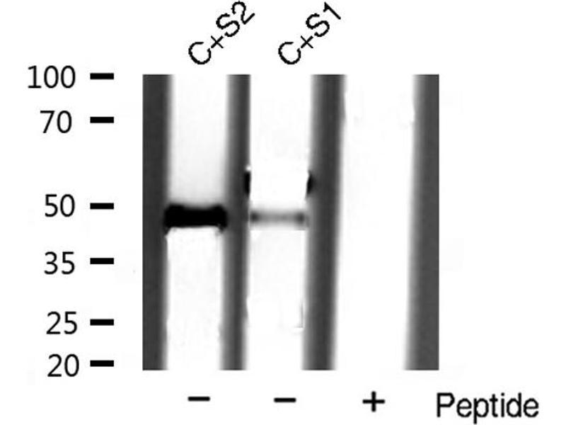Western Blotting (WB) image for anti-Vimentin (VIM) antibody (ABIN6269441)