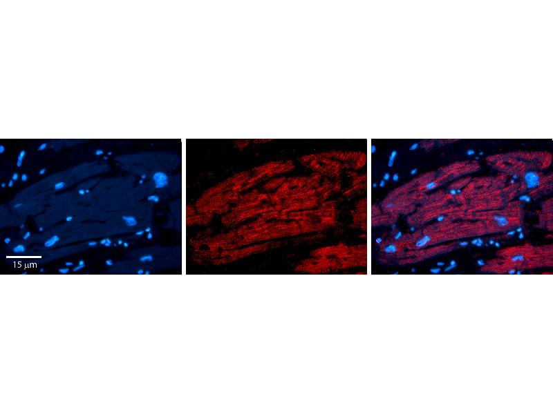 Immunohistochemistry (IHC) image for anti-Interferon Regulatory Factor 1 (IRF1) (N-Term) antibody (ABIN2777249)