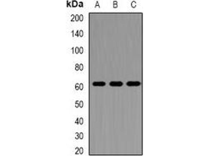 Western Blotting (WB) image for anti-Perforin 1 (Pore Forming Protein) (PRF1) antibody (ABIN3197764)