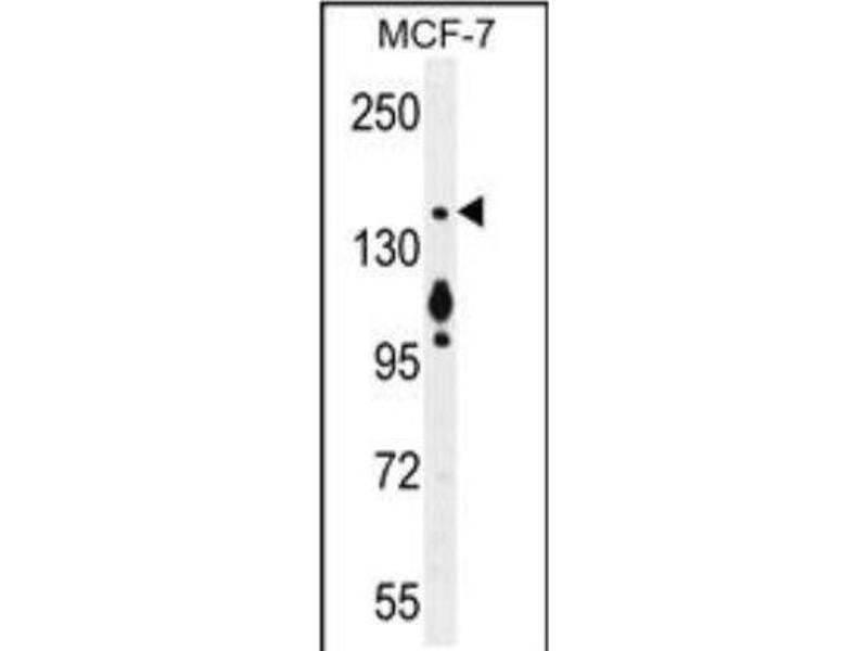 Western Blotting (WB) image for anti-Myosin VI (MYO6) (C-Term) antibody (ABIN4337147)