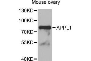 Image no. 1 for anti-Adaptor Protein, phosphotyrosine Interaction, PH Domain and Leucine Zipper Containing 1 (APPL1) antibody (ABIN1678717)