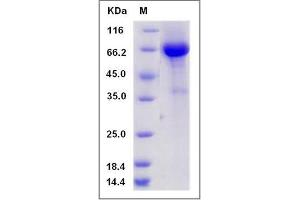 Image no. 1 for Calcium Activated Nucleotidase 1 (CANT1) (AA 80-401) protein (Fc Tag) (ABIN2005461)