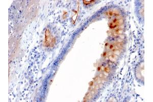 Image no. 5 for anti-Mucin 4, Cell Surface Associated (MUC4) (AA 1730-1864) antibody (ABIN6940125)