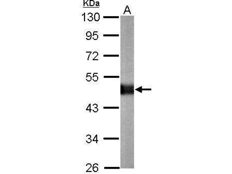 Western Blotting (WB) image for anti-Carboxypeptidase E (CPE) (Internal Region) antibody (ABIN2856267)