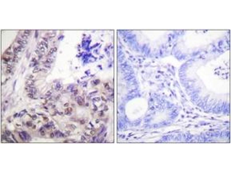 Immunohistochemistry (IHC) image for anti-Caspase 9 antibody (Caspase 9, Apoptosis-Related Cysteine Peptidase) (pSer144) (ABIN1531533)