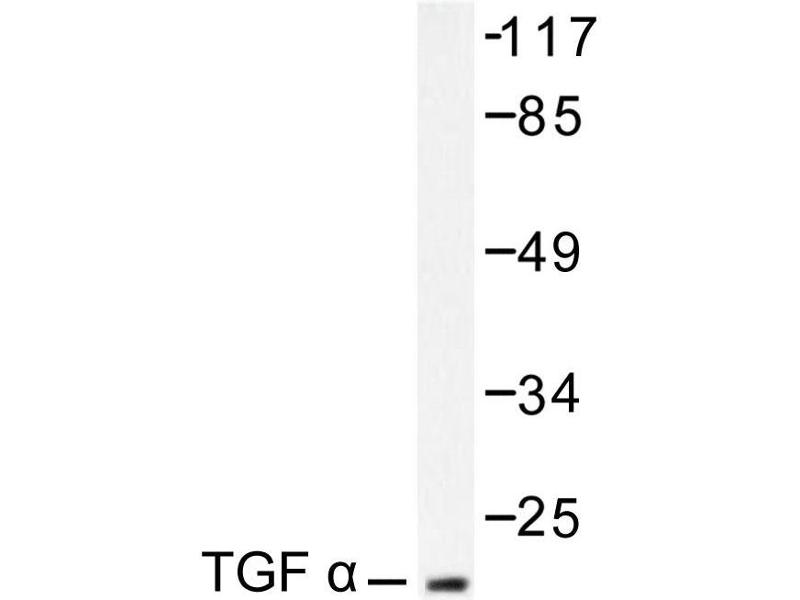 image for anti-TGFA antibody (Transforming Growth Factor, alpha) (ABIN271847)