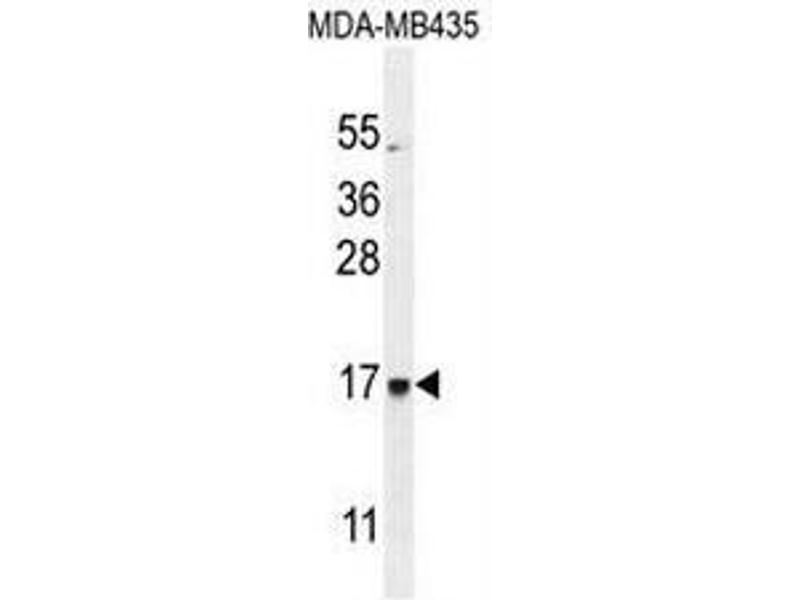 Western Blotting (WB) image for anti-Chromosome 21 Open Reading Frame 2 (C21orf2) (AA 172-202), (C-Term) antibody (ABIN950879)