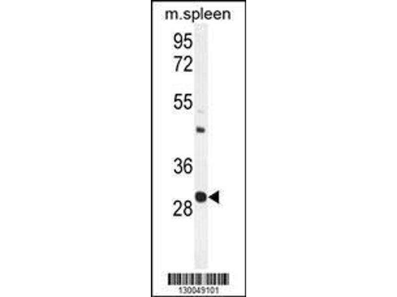 Western Blotting (WB) image for anti-Upstream Transcription Factor 1 (USF1) (AA 174-201), (Center) antibody (ABIN655030)