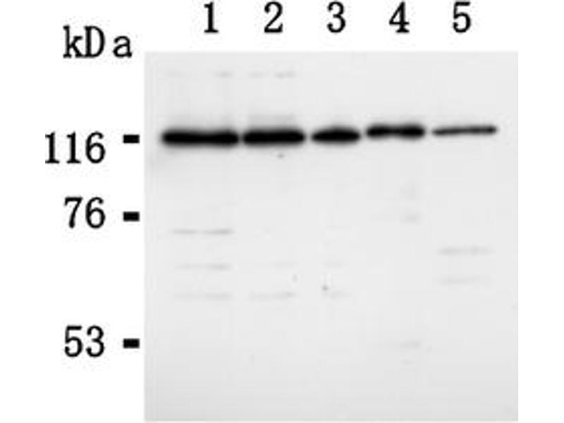 Western Blotting (WB) image for anti-RAD21 antibody (RAD21 Homolog (S. Pombe)) (C-Term) (ABIN567792)