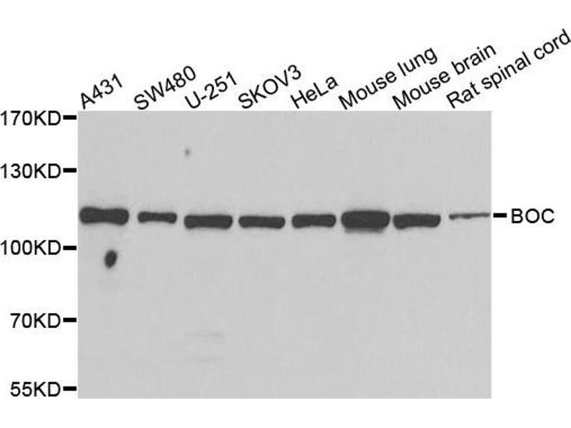 Image no. 1 for anti-Boc Homolog (Mouse) (BOC) antibody (ABIN2561446)