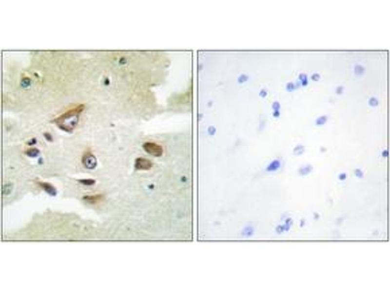Immunohistochemistry (IHC) image for anti-Clusterin (CLU) (AA 400-449) antibody (ABIN1534432)