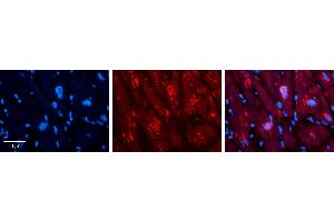 Image no. 3 for anti-MAX-Like Protein X (MLX) (C-Term) antibody (ABIN2777933)
