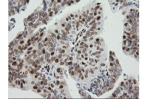 Image no. 5 for anti-Zinc Finger and SCAN Domain Containing 18 (ZSCAN18) antibody (ABIN1501858)