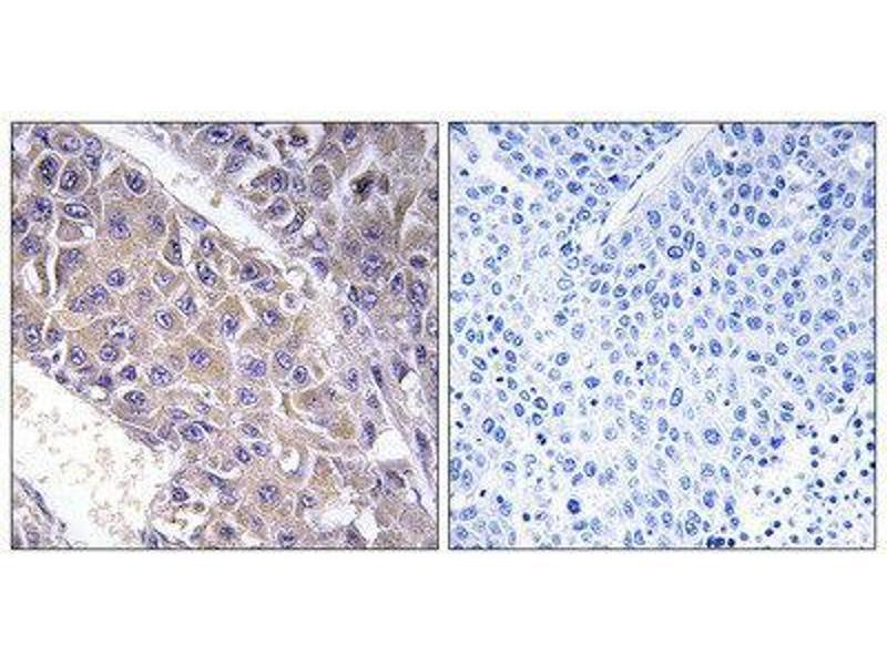 Immunohistochemistry (IHC) image for anti-UDP-Gal:betaGlcNAc beta 1,4- Galactosyltransferase, Polypeptide 3 (B4GALT3) (Internal Region) antibody (ABIN1850910)