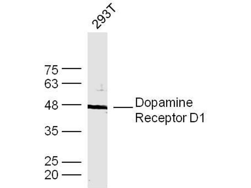 Image no. 3 for anti-Dopamine Receptor D1 (DRD1) (AA 155-192) antibody (ABIN730843)