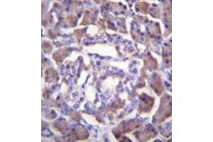 Image no. 2 for anti-Protease, serine, 3 (PRSS3) (AA 143-171), (Middle Region) antibody (ABIN955347)