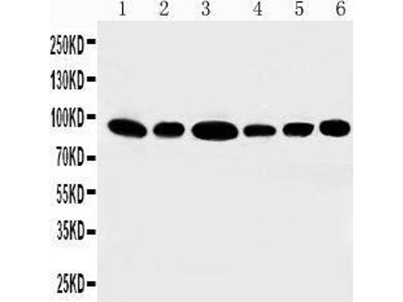 Western Blotting (WB) image for anti-Signal Transducer and Activator of Transcription 3 (Acute-Phase Response Factor) (STAT3) (AA 751-770), (C-Term) antibody (ABIN3044166)