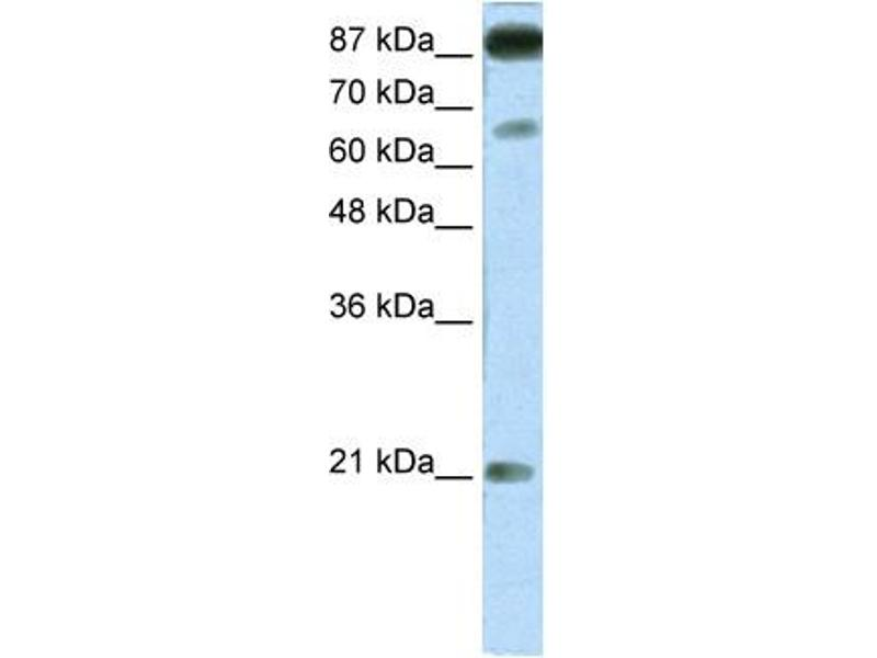 Western Blotting (WB) image for anti-NFATC4 antibody (Nuclear Factor of Activated T-Cells, Cytoplasmic, Calcineurin-Dependent 4) (Middle Region) (ABIN2777543)