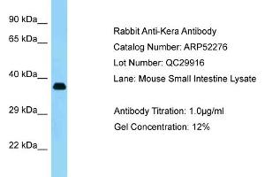 Western Blotting (WB) image for anti-Keratocan (KERA) (C-Term) antibody (ABIN2784856)
