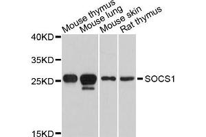 Western Blotting (WB) image for anti-Suppressor of Cytokine Signaling 1 (SOCS1) antibody (ABIN5995772)
