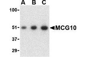 Image no. 2 for anti-Poly(rC) Binding Protein 4 (PCBP4) (C-Term) antibody (ABIN1030510)