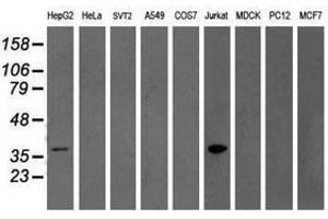 image for anti-GRAP2 antibody (GRB2-Related Adaptor Protein 2) (ABIN1498514)