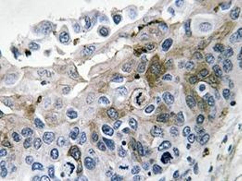 Immunohistochemistry (Paraffin-embedded Sections) (IHC (p)) image for anti-IL1B antibody (Interleukin 1, beta) (ABIN498526)