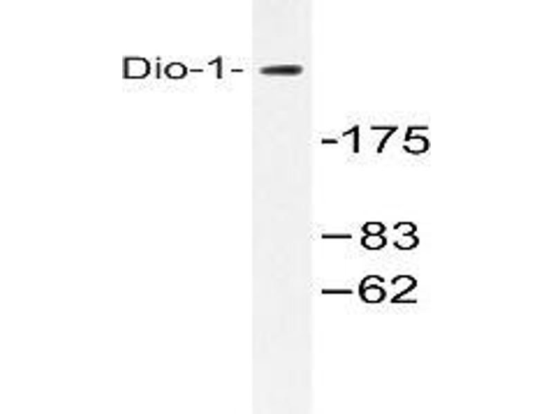 Western Blotting (WB) image for anti-Death Inducer-Obliterator 1 (DIDO1) antibody (ABIN498449)