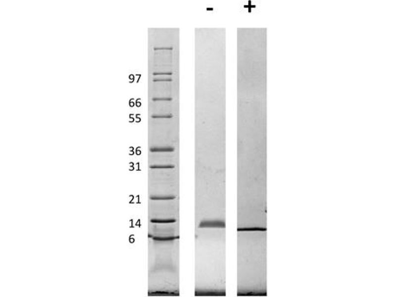 Image no. 2 for Chemokine (C-C Motif) Ligand 3 (CCL3) protein (ABIN6699630)